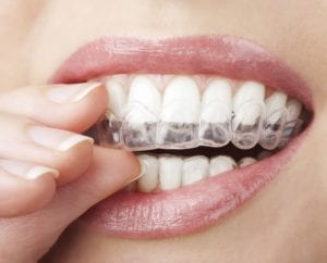invisalign-orthodontics-for-working-professionals