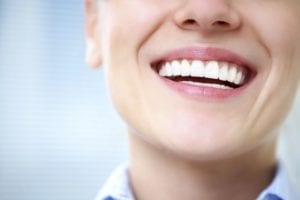 porcelain-veneers-perfect-smile-without-orthodontics