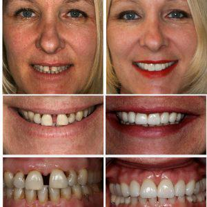 Collage of Patient Before and After Smile Makeover