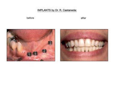Before vs. After Dental Implants
