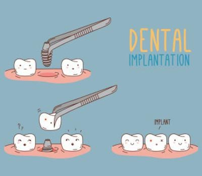 Dental Implantation Animation