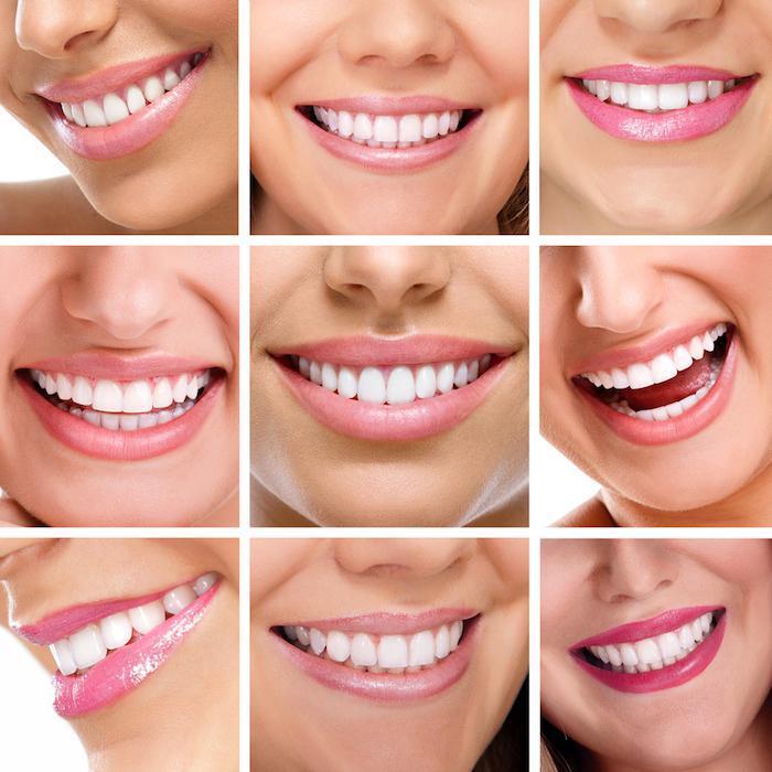 Panel of Smiles