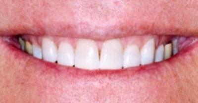 Top Row of White Teeth