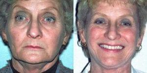 San Francisco_Implants_Patient_1-2