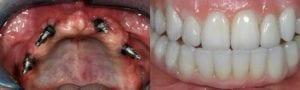San Francisco_Implants_Patient_2-1