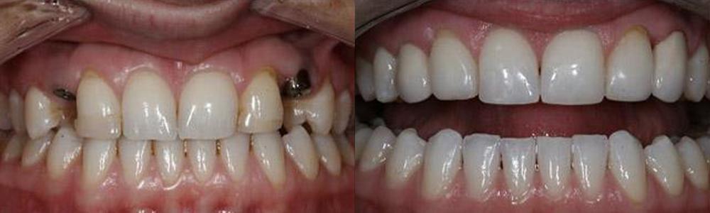 San Francisco_Implants_Patient_3-1
