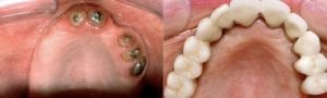 San Francisco_Implants_Patient_5-1