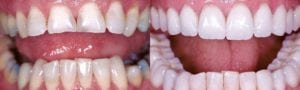San Francisco_Smile-Makeover_Patient_1-1