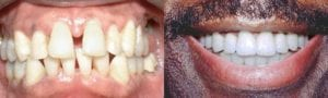 San Francisco_Smile-Makeover_Patient_2-1