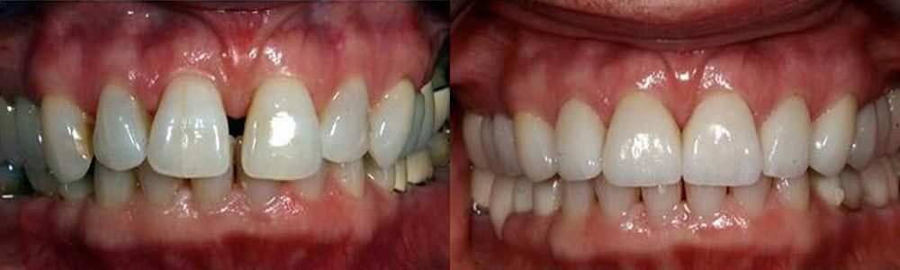 San Francisco_Smile-Makeover_Patient_3-1
