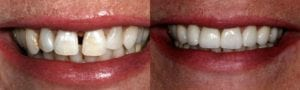 San Francisco_Smile-Makeover_Patient_3-2
