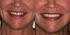 San Francisco_Smile-Makeover_Patient_3-3