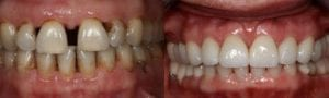 San Francisco_Smile-Makeover_Patient_4-1