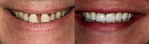 San Francisco_Smile-Makeover_Patient_4-2