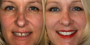 San Francisco_Smile-Makeover_Patient_4-3