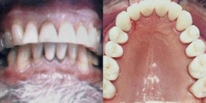 San Francisco_Smile-Makeover_Patient_5-1