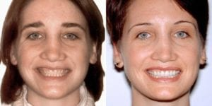 San Francisco_Smile-Makeover_Patient_6-2