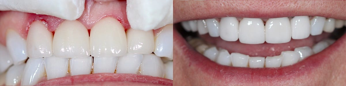 San-Francisco_Veneers_Patient_1