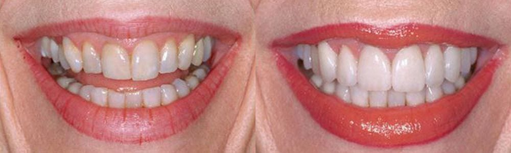 San-Francisco_Veneers_Patient_10-1