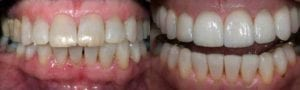 San-Francisco_Veneers_Patient_11-1