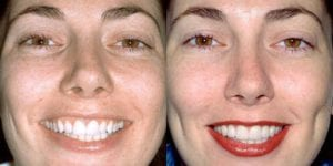 San-Francisco_Veneers_Patient_12-2