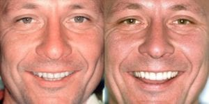 San-Francisco_Veneers_Patient_14-2