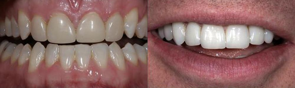 San-Francisco_Veneers_Patient_15-1