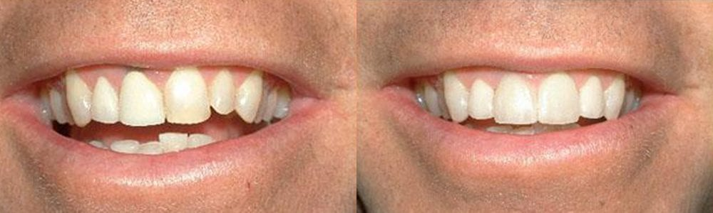 San-Francisco_Veneers_Patient_9-1