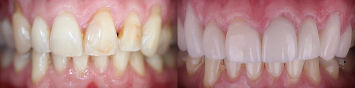 San-Francisco_Veneers_Patient_17