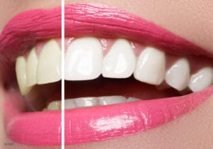 San Francisco Female Mouth With Pink Lipstick Showing Before And After Teeth Whitening Results