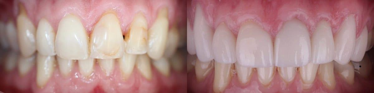 skoulas-san-francisco-porcelain-crowns-patient-10-1