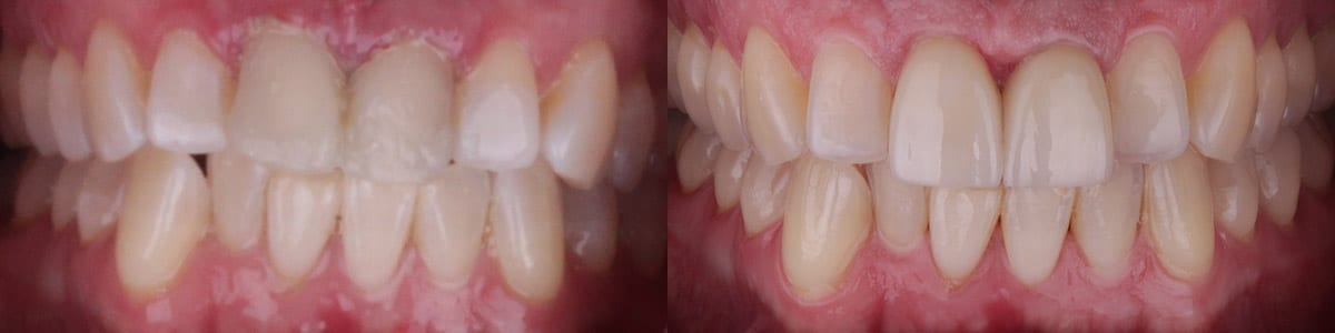 skoulas-san-francisco-porcelain-crowns-patient-11-1