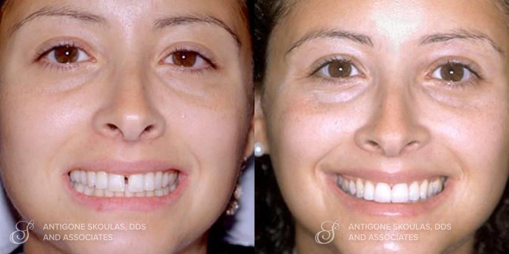 skoulas_dds_sanfrancisco_beforeandafter_Veneers_Patient_16-2