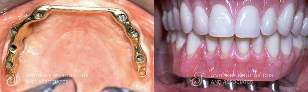 skoulas_dds_sanfrancisco_beforeandafter_dentalImplants_Patient_1-1