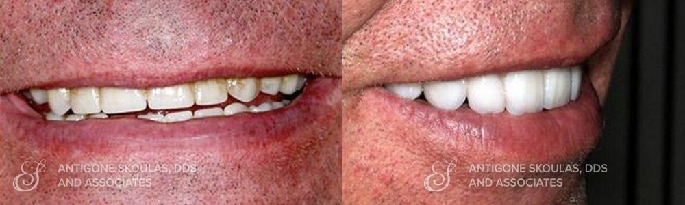skoulas_dds_sanfrancisco_beforeandafter_dentalImplants_Patient_2-2