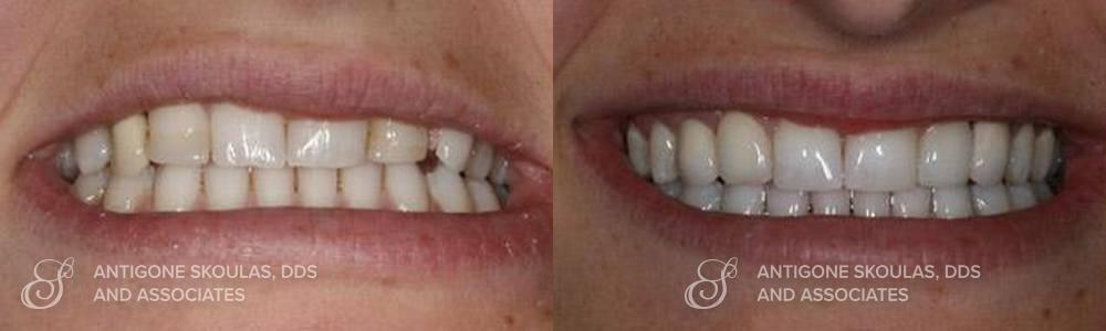 skoulas_dds_sanfrancisco_beforeandafter_dentalImplants_Patient_3-2