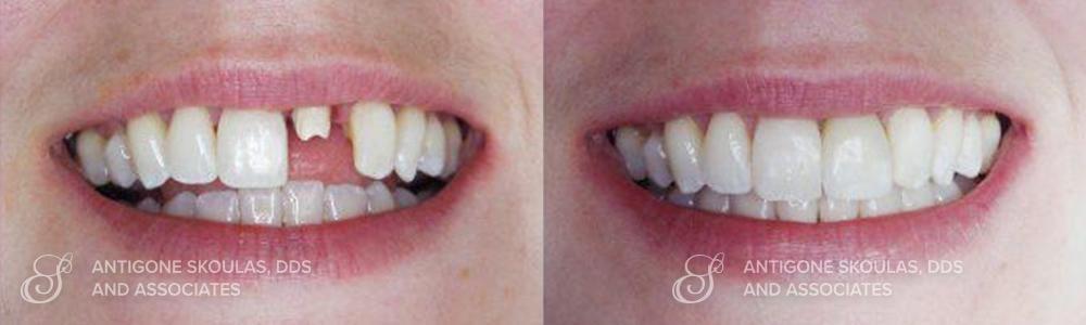 skoulas_dds_sanfrancisco_beforeandafter_dentalImplants_Patient_4-1